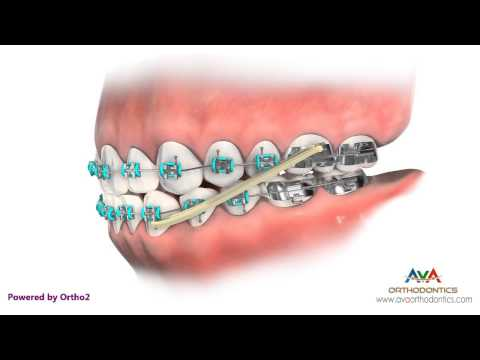 Crossbite (AKA Underbite) Treatment by Rubber Bands - Orthodontic Instruction