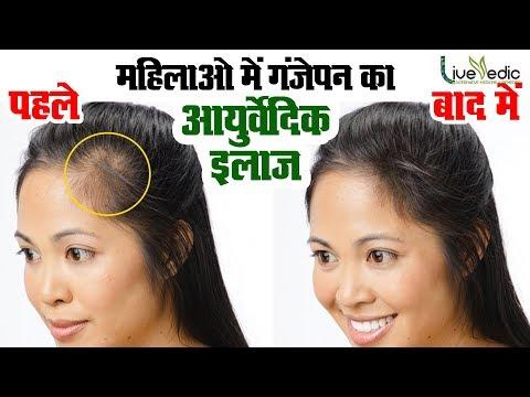 जानिए महिलाओ में गंजेपन की समस्या के कारण और बचाव - Female Baldness & Solutions - Live vedic