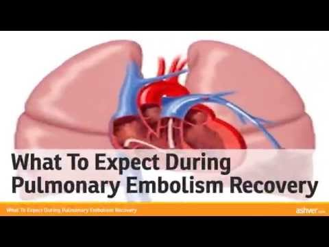 What To Expect During Pulmonary Embolism Recovery