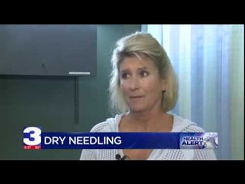 New Dry Needling Treatment Helps with Chronic Pain