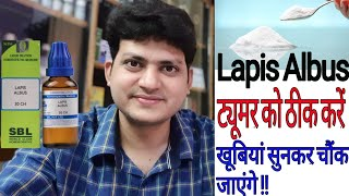 Lapis Albus ! Homeopathic Medicine for tumor ? sign & symptoms action of medicine &  how to use !