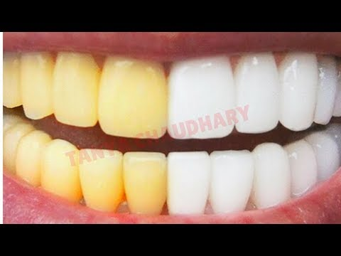 Teeth Whitening at Home In Just 3 Minutes | How To Whiten Teeth At Home | Home Remedies