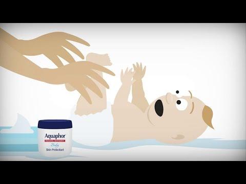 Diaper rash 101 | Paid for by Aquaphor® Baby