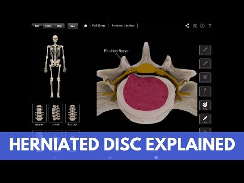 What is a Lumbar Herniated Disc? How to Treat It Without Surgery (ANIMATED VIDEO).