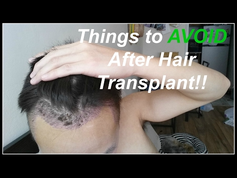 Things NOT to Do After Hair Transplant!
