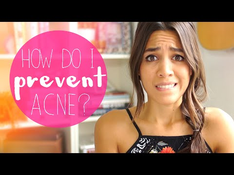 MY 10 TIPS TO PREVENT ACNE!