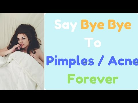 How to Get Rid Of Pimples Or Acne - 10 Natural Remedies to Get Rid of Acne Permanently & Fast