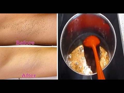Natural Hair Removal At Home || Sugar Wax Live DEMONSTRATION