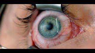 LASIK - Refractive Surgery ~ understand the procedure.
