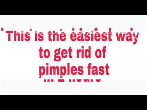 How to get rid of pimples in 2 hours (fast)