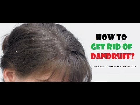 How to Get Rid of Dandruff | Home Remedies for Dandruff