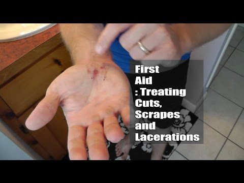 First Aid : Treating Cuts, Scrapes and Lacerations