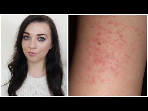 How To Treat & Hide Keratosis Pilaris | Makeupbysaz