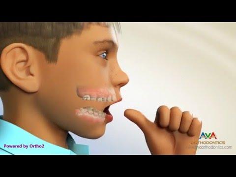 Thumb Sucking Habit Breaker - Orthodontic Device