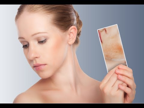 How to Get Rid of Redness on Face - Facial Redness Treatment