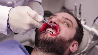 We Got $2,500 Teeth Whitening