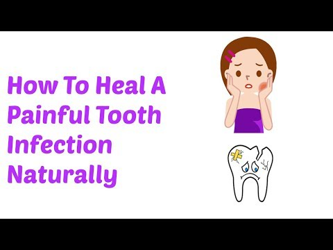 How To Heal a Painful Tooth Infection Naturally