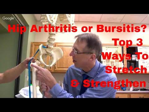 Hip Arthritis or Bursitis? Top 3 Ways to Stretch & Strengthen + 3 Tips to Stop Pain Now.