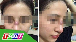 Quảng Ninh: Nâng mũi thẩm mỹ tại Spa, nữ sinh suýt thủng vách mũi | THDT