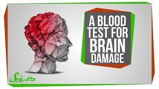A Blood Test for Brain Damage