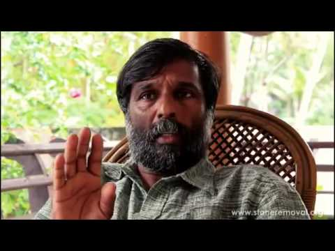 Kidney GallBladder Pancreas Stone Removal Treatment : Mohanan Vaidyar