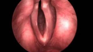 High Speed Video of the Vocal Folds