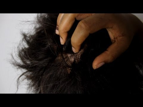 The Reasons Why You Have An Itchy Dry Scalp