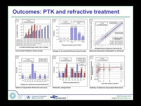 LoVC Course on Therapeutic Corneal Refractive Surgery Part 5 (of 6): Trans-Epithelial PTK Outcomes