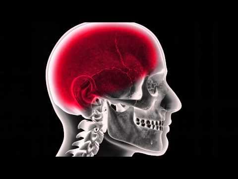 Ask The Expert - Meningitis - Dr Melissa Barton, Sinai-Grace Emergency Physician