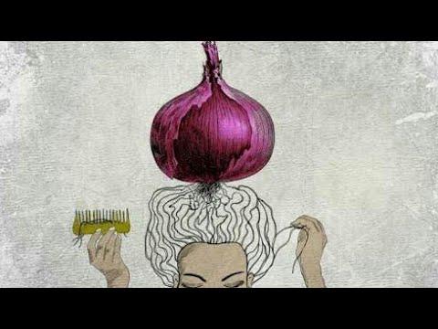 How to treat Alopecia naturally with onion.