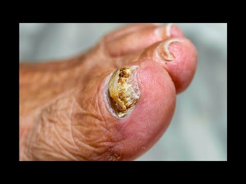 Toenail fungus treatment - The Best Way to Remove Nail Fungus Fast