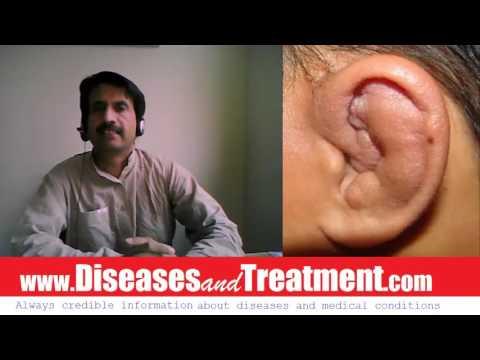 Cauliflower Ear : Causes, Diagnosis, Symptoms, Treatment, Prognosis