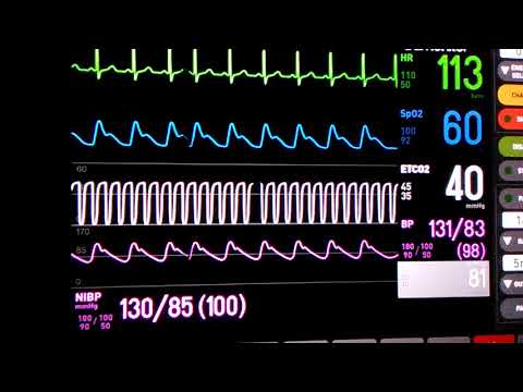 Patient Monitor going crazy sounds!