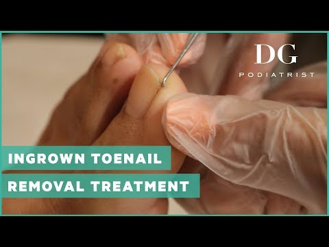 Ingrown toenail removal treatment 2