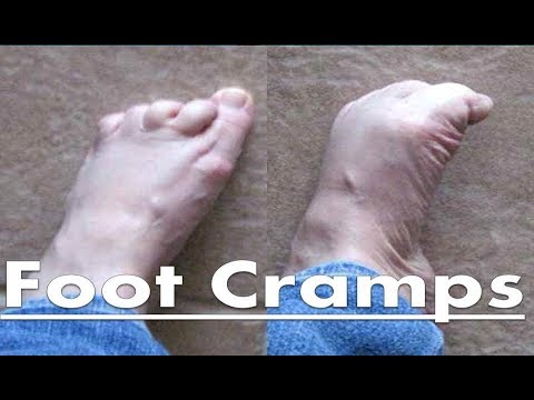 Foot Cramps at Night - The Home Treatment Guide!