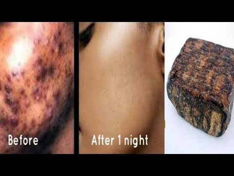 ONE NIGHT PIMPLES AND DARK SPOTS REMOVAL VERY EFFECTIVE REVIEW