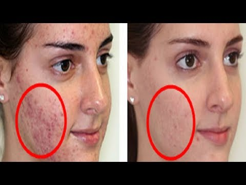 12 Effective Home Remedies For Acne