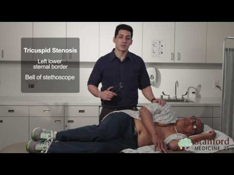 Approach to the Exam of Diastolic Murmurs (Real Patient and Sounds!) - Stanford Medicine 25
