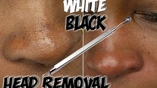 How To Get Rid Of Black And White Heads Quick And Easy Step By Step I