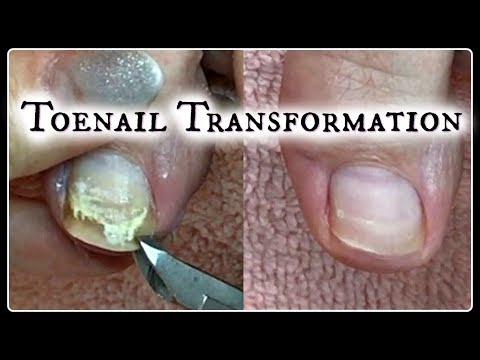 👣 Pedicure Tutorial Toenail Transformation and Time Saving Tips  ✔