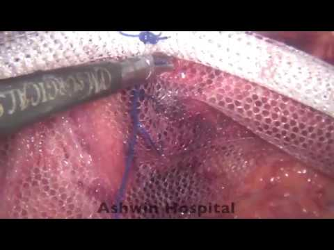 SIMPS TAPP repair for Inguinal hernias completely sutured no fixation devices