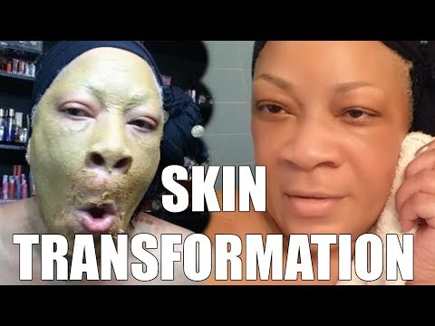 WATCH YOUR SKIN TRANSFORM IN MINUTES WITH THIS MASK – BRIGHTER, GLOWING, SOFTER, MOISTURIZED
