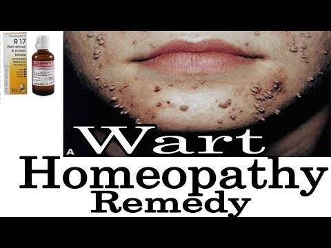 Warts - Discussion and Remedy in Homeopathy by Dr. P.S Tiwari