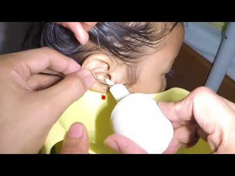 Removal of Hard Clogged Stubborn Earwax by Ear Irrigation