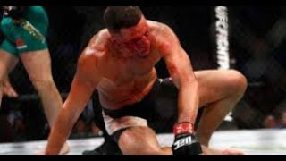 Download I said CONNOR MCGREGOR was an ALL TIME GREAT MMA striker! Here is proof. Video