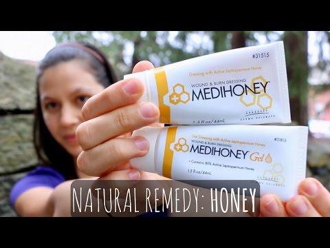 Honey Heals Wounds, Burns & Even MRSA? | My Review of MEDIHONEY