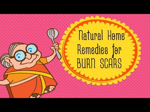 Burn Scars | How To Get Rid Of Burn Scars And Marks At Home | Top 5 Home Remedies for Scar Removal
