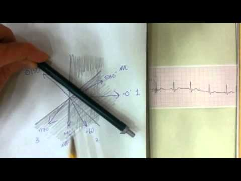 Simple Mean Electrical Axis Tracing on EKG Strip