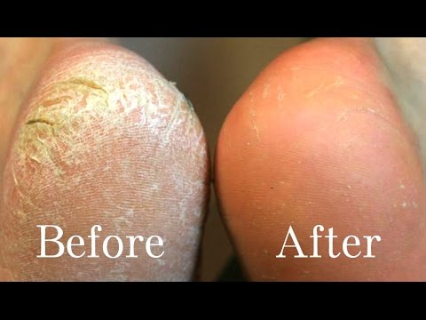 HOME REMEDIES FOR CRACKED HEELS  | REMOVE CRACKED HEELS FAST AND EASYLY AT HOME  (live demo)