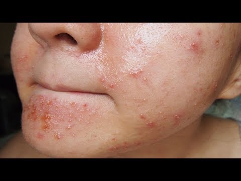 Pimples: Amazing Secrets to Treat Pimples After Waxing.